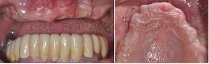blog_dental_trey_definitivo-guiordano-1