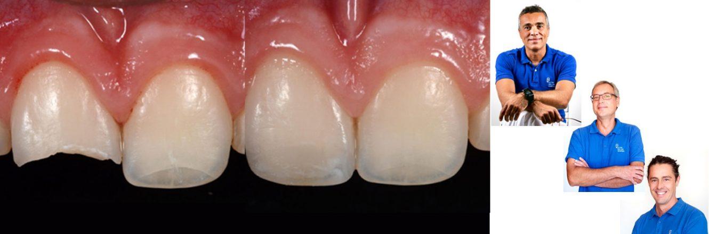 Alla ricerca della forma perfetta: la morfologia dentale come parametro del successo clinico
