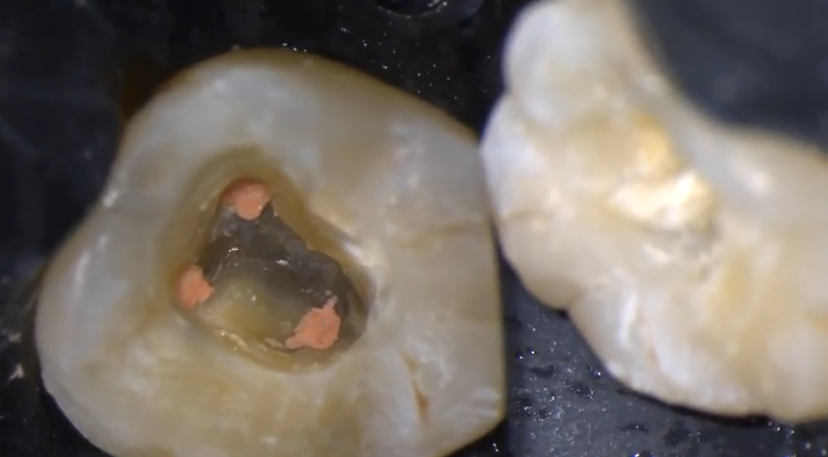Caso complesso: dente sintomatico trattato in seduta singola con strumenti NiTI EdgeEndo