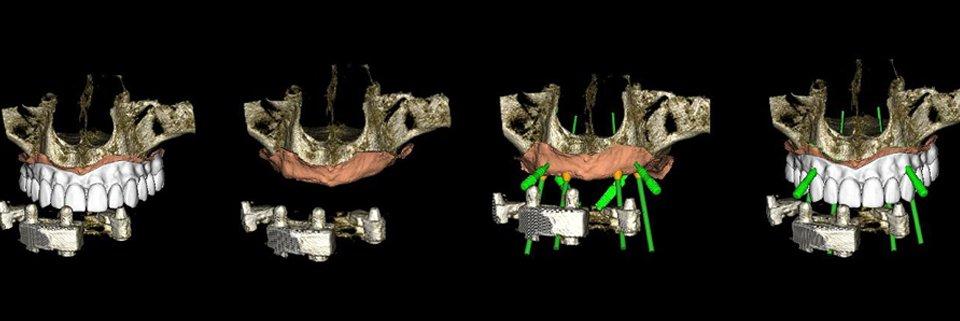 Flusso di lavoro completamente digitale nella progettazione e realizzazione di protesi overdenture