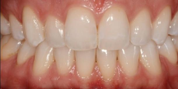 Tecniche di sbiancamento domiciliare: Kit White Dental Beauty con tecnologia Novon® - CASO CLINICO