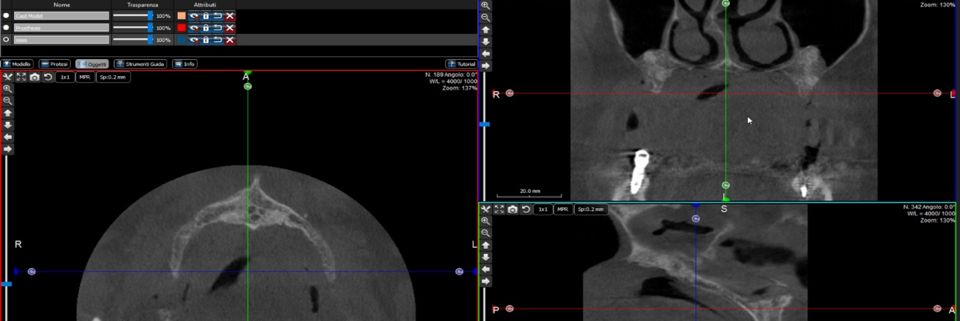 Valutazione radiologica del COM