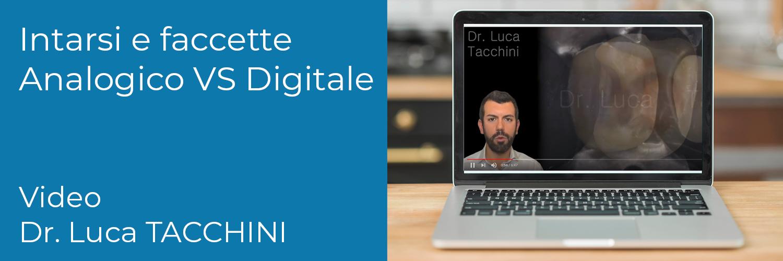 Analogico vs Digitale