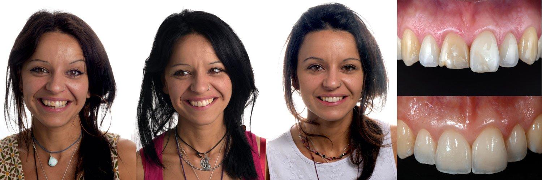Game, set, match in estetica dentale: dalla progettazione alla finalizzazione