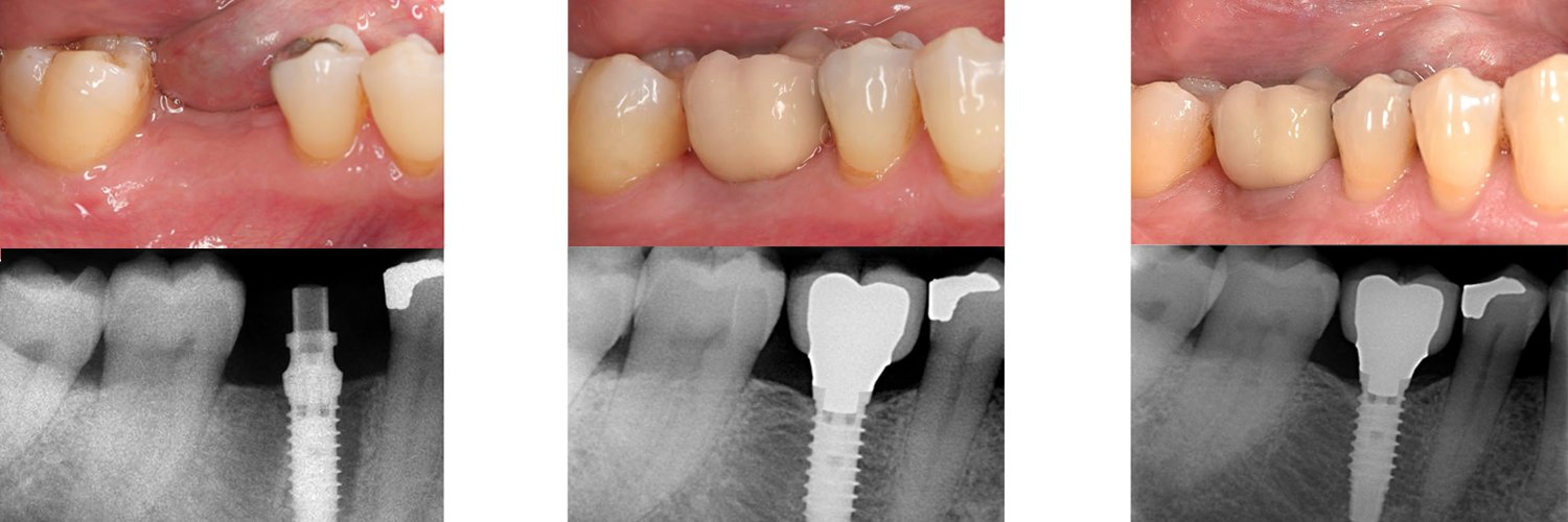 Immediate versus early non-occlusal loading of dental implants placed flapless in partially edentulous patients: A 10-year randomized clinical trial