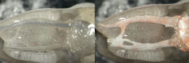 [VIDEO CASO CLINICO] Bioceramic Sealer & Carrier based Obturation