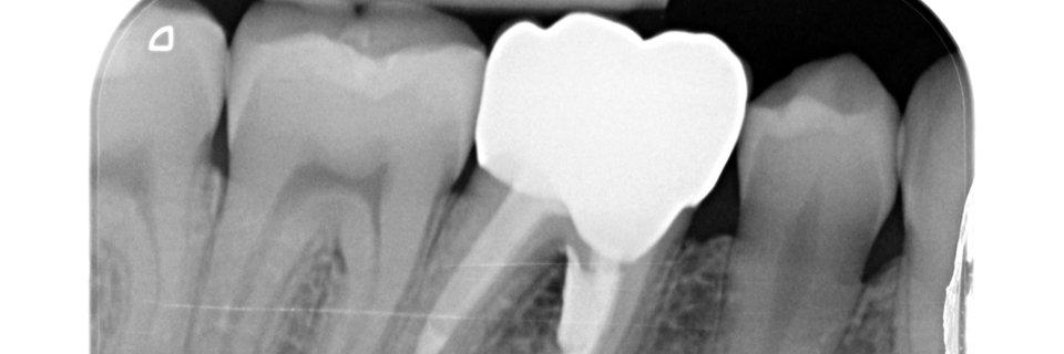 Riparazione chirurgica di estesa perforazione da stripping nella radice mesiale di molare inferiore