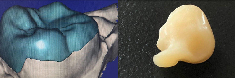 [VIDEO CASO CLINICO] Stampa 3D: onlay realizzato con stampante Varseo XS. Precisione assoluta!